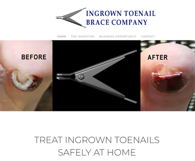 Ingrown Toenail Brace Company